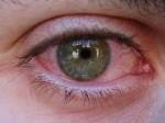 congiuntivite allergica-occhio